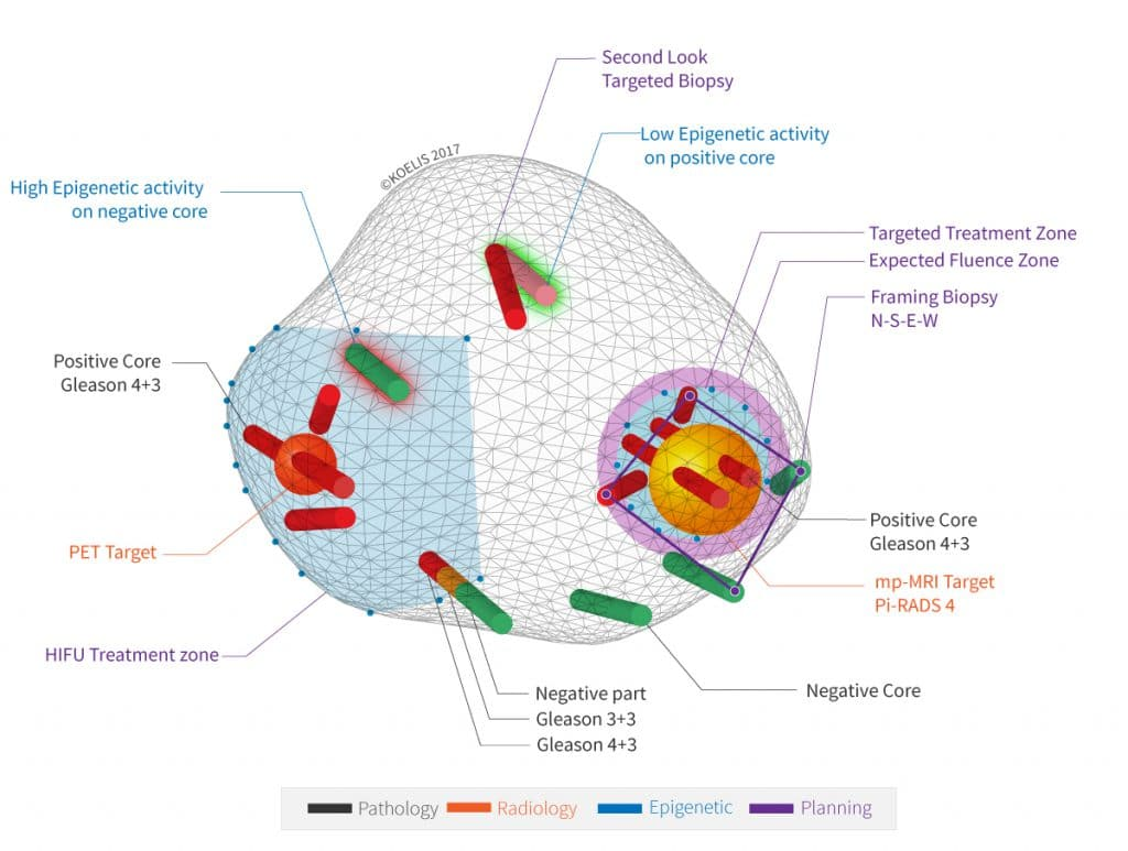 Koelis 3D cartography of a prostate cancer