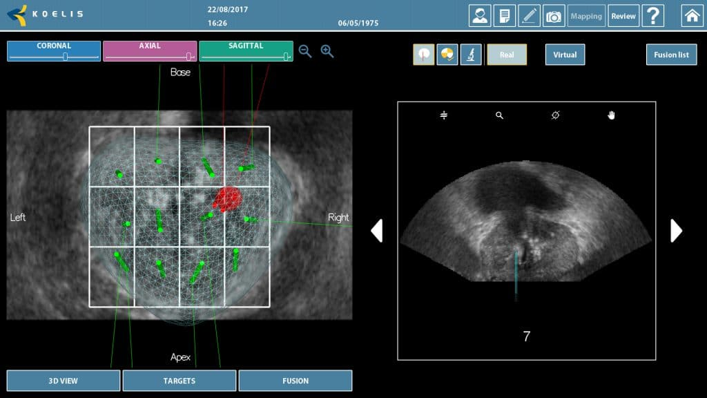 KOELIS® 3D cartography of a prostate - Transrectal approach