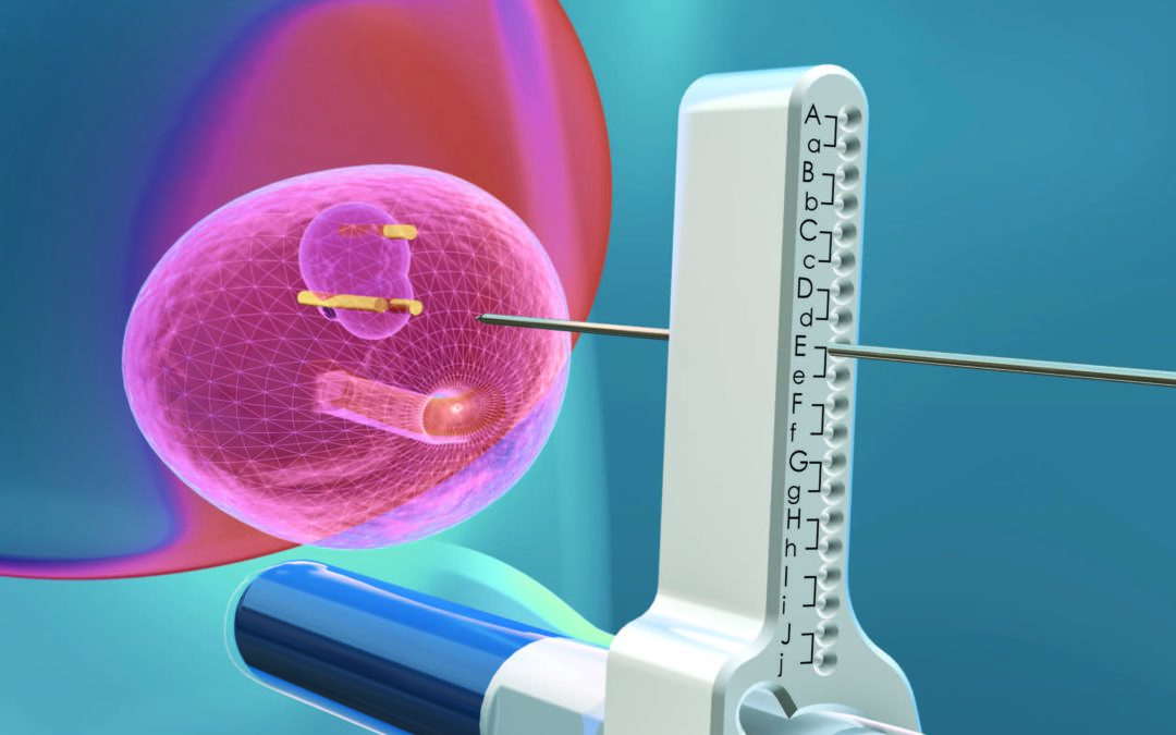 Koelis announces first procedures in 3D fusion imaging-guided focal ablation of prostate cancer in its clinical study VIOLETTE.