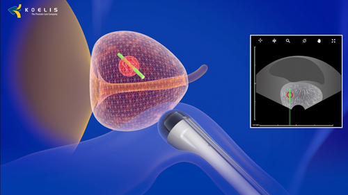 transrectal targeted prostate biopsy with trinity® fusion biopsy system