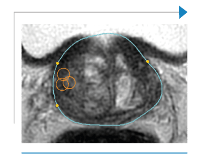 MRI/US contour of the prostate made with Trinity, Koelis fusion biopsy system